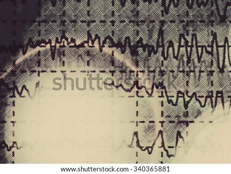 brain wave on electroencephalogram EEG for epilepsy, illustration - stock photo