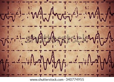 brain wave on electroencephalogram EEG for epilepsy, illustration grunge background - stock photo