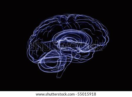 Brain xray - stock photo