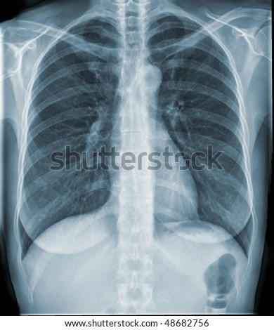 breathing lungs - stock photo