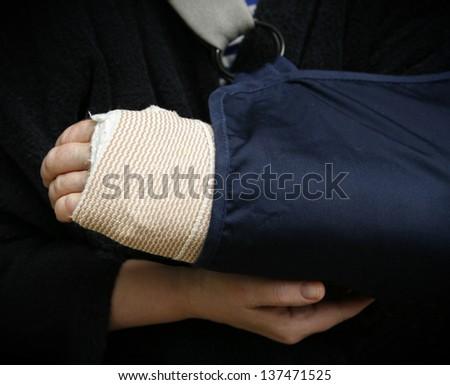 Broken arm - stock photo