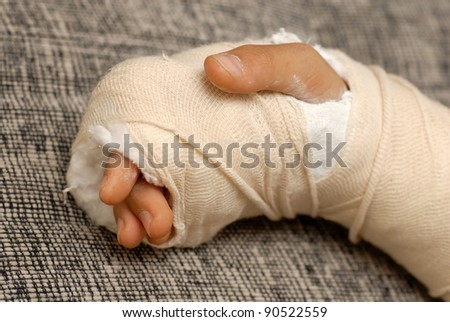 Hurt Child Stock Images Royalty Free Images Amp Vectors
