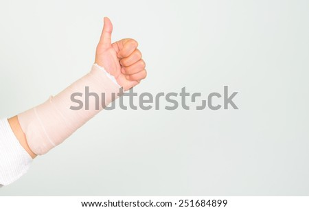Broken arm in a cast. Fingers show the thumbs up. - stock photo