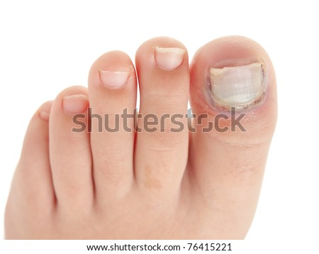 Broken big toe with nail detachment on pure white background - stock photo