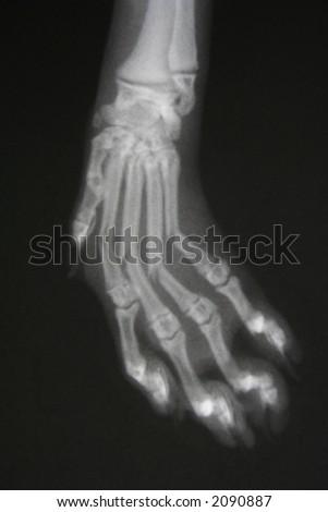 broken hand / paw - stock photo