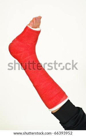 Broken leg - stock photo