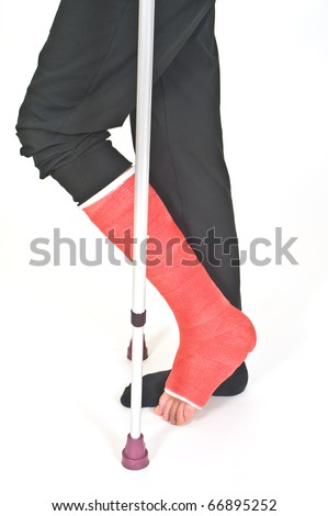 Broken leg - stock photo