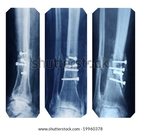 broken leg collection - x-ray pictures - stock photo
