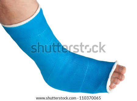 broken leg in a plaster cast isolated on white