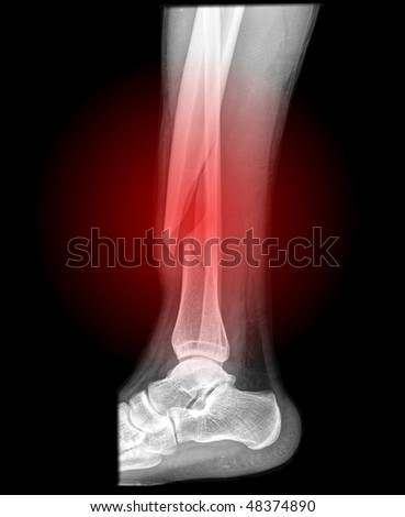 broken lower leg side view with red illumination x-ray - stock photo