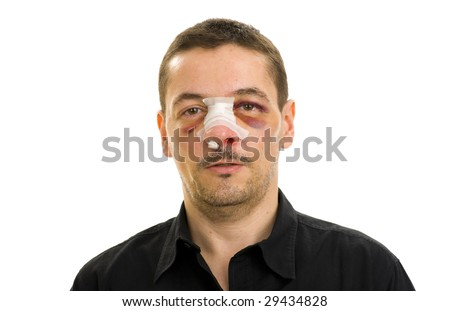 broken nose and black eyes post operation - stock photo