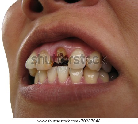 Broken tooth, upper right central incisor, frontal view - stock photo