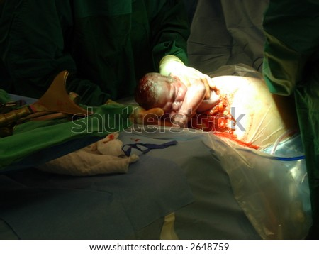 C-section Birth - stock photo