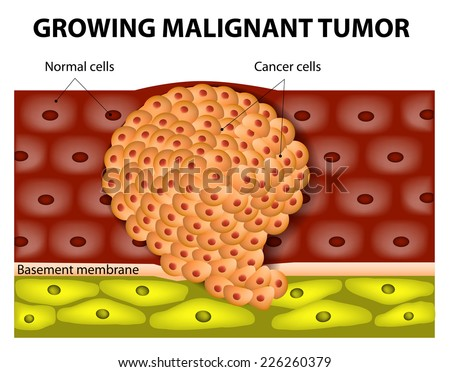 Cancer cells in a growing malignant tumor. malignant neoplasm. metastasis - stock photo