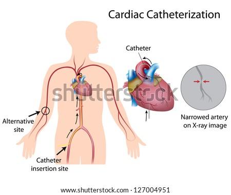 Cardiac catheterization - stock photo