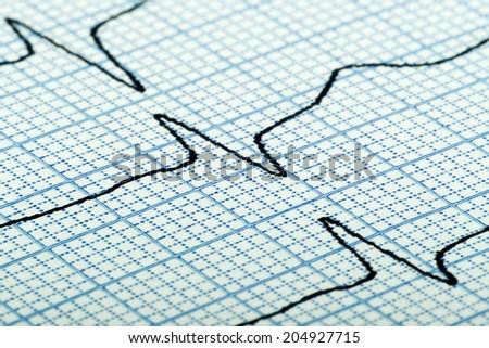 cardiogram (aka electrocardiogram, aka ECG) of heart beat on blue grid paper - stock photo