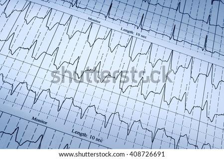 cardiogram as background - stock photo