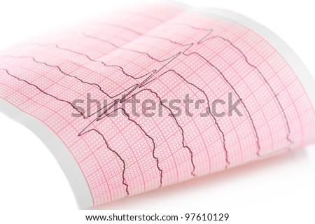 Cardiogram. Macro of ECG graph - stock photo