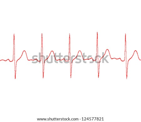cardiogram on a white background - stock photo