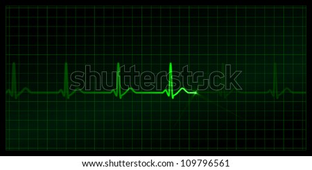 Cardiogram on the monitor. Black background