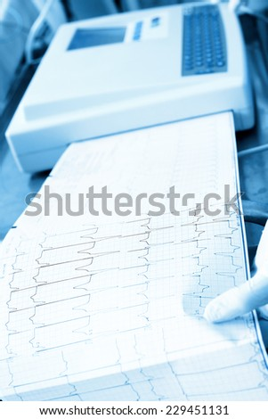 Cardiogram recording in the hospital - stock photo