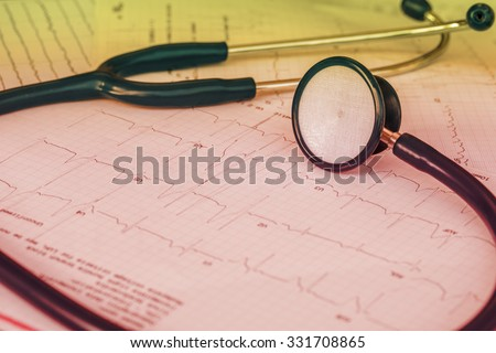 Cardiogram with stethoscope . - stock photo