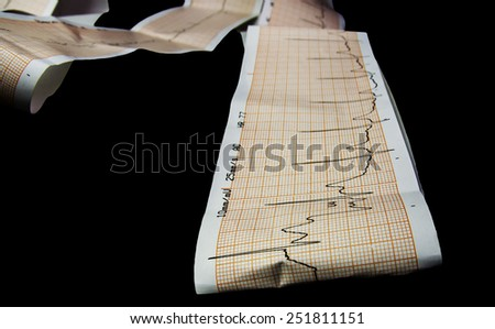 cardiograph - stock photo