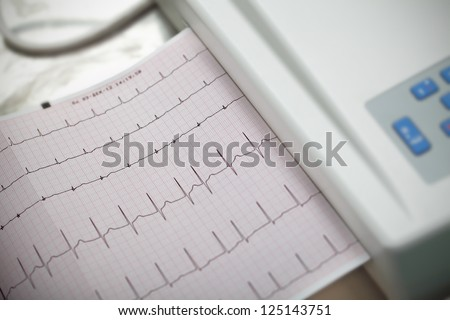 Cardiography. Method in medicine. - stock photo