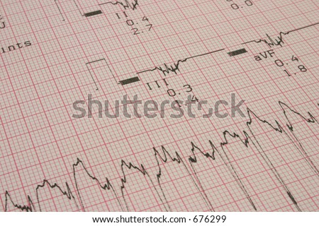 cardiological test results #3 - stock photo