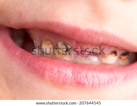 caries on teeth