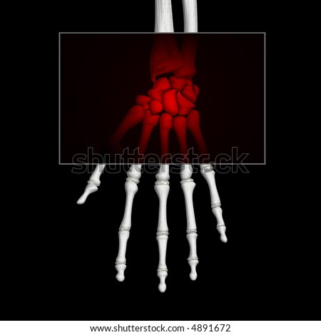 Carpal Tunnel Wrist Pain - stock photo