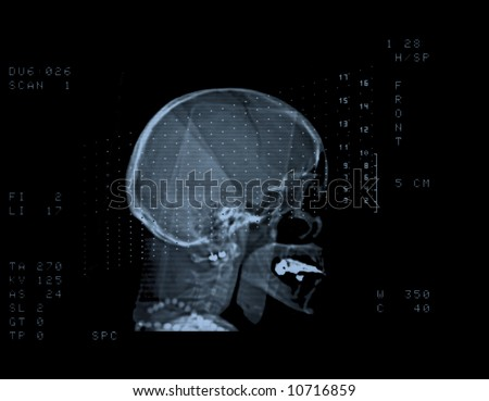cat scan of a middle aged woman head