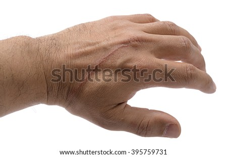 Cat scratch on a male hand isolated on white background. - stock photo