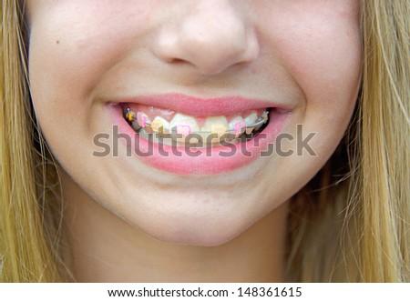 caucasian girl with orthodontic braces on her teeth - stock photo