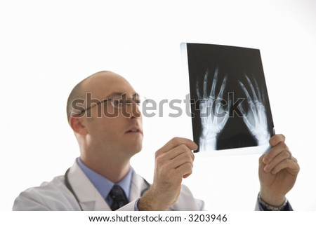 Caucasian mid adult male physician holding up hand xrays. - stock photo