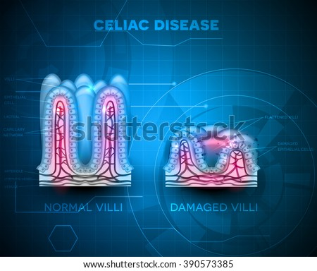 Celiac disease affected small intestine villi. Healthy and damaged villi on a blue technology background.
