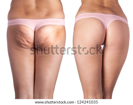 cellulite ass and beautiful ass. - stock photo