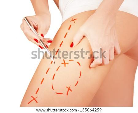 Cellulite cut out.Conceptual image, plastic surgery concept. - stock photo