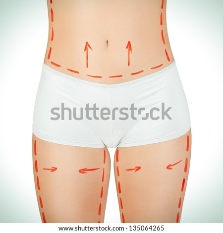 Cellulite removal plan.Red markings on young woman body preparing for plastic surgery.Conceptual image. - stock photo