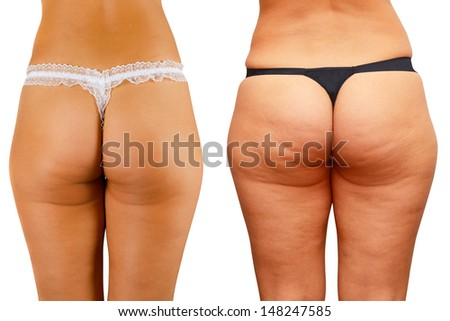 cellulite skin at woman buttocks - stock photo
