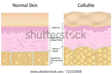 Cellulite versus smooth skin, labeled - stock photo