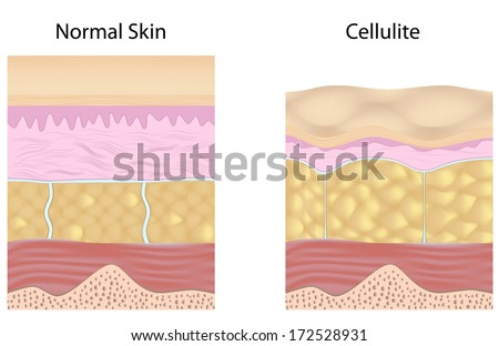 Cellulite versus smooth skin unlabeled - stock photo