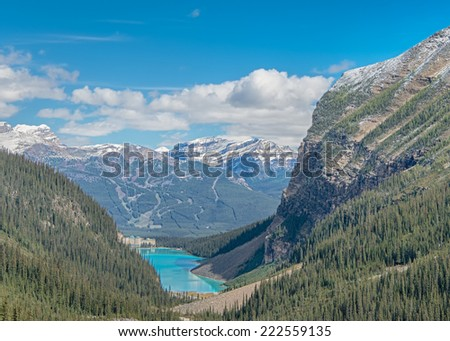 Chateau Lake Louise, Banff National Park, Alberta, Canada - stock photo