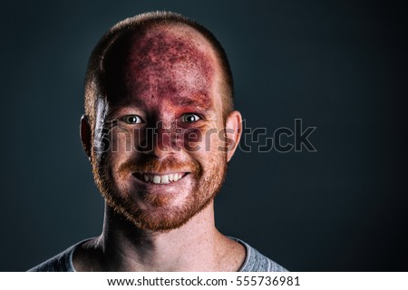 Cheerful adult male with a huge red birth mark on his face. Strawberry hemangiomas (also called strawberry mark, nevus vascularis, capillary hemangioma, hemangioma simplex)