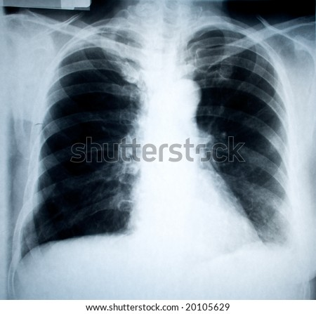 chest frontal xray image for medical diagnosis