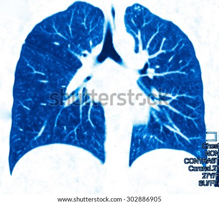 Chest image in blue tone. Radiology image for medical treatment. - stock photo