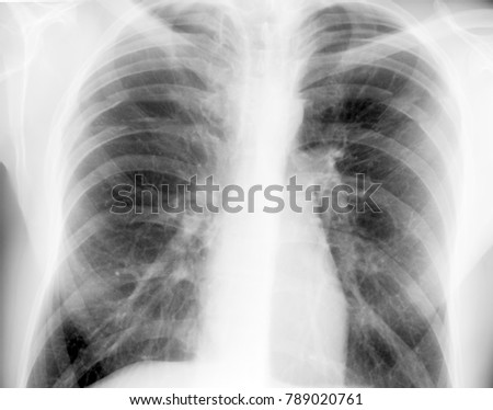 chest or lung x-ray