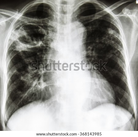 chest radiography is investigation for interstitial lung disease