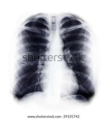 chest x ray - stock photo