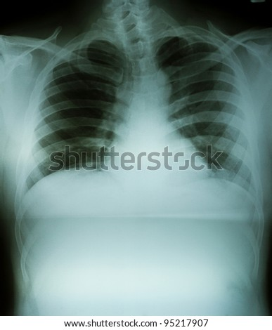 chest x-ray - stock photo